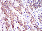 IHC of paraffin-embedded liver cancer tissues using ABCC4 mouse monoclonal antibody with DAB staining.