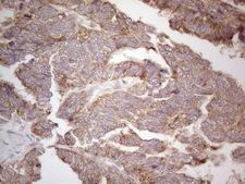 ABCC5 / MRP5 Antibody - Immunohistochemical staining of paraffin-embedded Adenocarcinoma of Human ovary tissue using anti-ABCC5 mouse monoclonal antibody. (Heat-induced epitope retrieval by 1mM EDTA in 10mM Tris buffer. (pH8.5) at 120°C for 3 min. (1:150)