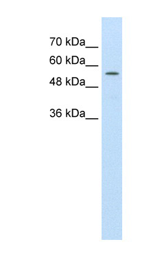 ABCD4 antibody ARP43656_T100-EAW81165-ABCD4(ATP-binding cassette, sub-family D (ALD), member 4) Antibody Western blot of HepG2 cell lysate.  This image was taken for the unconjugated form of this product. Other forms have not been tested.