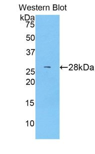 Western blot of recombinant ABCG1.  This image was taken for the unconjugated form of this product. Other forms have not been tested.
