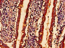 ABHD10 Antibody - Immunohistochemistry analysis of human small intestine tissue at a dilution of 1:100
