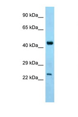 ABHD12 antibody Western blot of Mouse Thymus lysate. Antibody concentration 1 ug/ml.  This image was taken for the unconjugated form of this product. Other forms have not been tested.