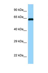 ABI1 antibody Western blot of Fetal Brain lysate. Antibody concentration 1 ug/ml.  This image was taken for the unconjugated form of this product. Other forms have not been tested.