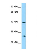 ABI1 antibody Western blot of 721_B Cell lysate. Antibody concentration 1 ug/ml.  This image was taken for the unconjugated form of this product. Other forms have not been tested.