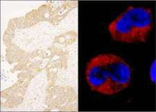 ABL1 / c-ABL Antibody - Detection of Human cAbl by Immunohistochemistry and Immunocytochemistry. Sample: FFPE section of human ovarian carcinoma (left) and formaldehyde-fixed K562 cells (contains the chromosomal translocation, t(9:22) that creates the BCR/ABL fusion gene) (right). Antibody: Affinity purified rabbit anti-cAbl used at a dilution of 1:1000 (1 ug/ml). And Red-fluorescent goat anti-rabbit IgG cross-adsorbed Antibody used at a dilution of 1:100.