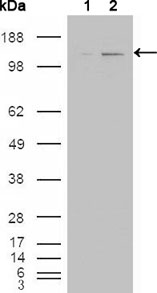 Western blot using ABL2 mouse monoclonal antibody against HEK293T cells transfected with the pCMV6-ENTRY control (1) and pCMV6-ENTRY ABL2 cDNA (2).