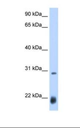ac / Achaete Antibody - Drosophila cell lysate. Antibody concentration: 0.25 ug/ml. Gel concentration: 12%.  This image was taken for the unconjugated form of this product. Other forms have not been tested.