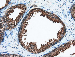 IHC of paraffin-embedded Human prostate tissue using anti-ACAT2 mouse monoclonal antibody. (Dilution 1:50).