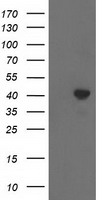 ACAT2 Antibody - HEK293T cells were transfected with the pCMV6-ENTRY control (Left lane) or pCMV6-ENTRY ACAT2 (Right lane) cDNA for 48 hrs and lysed. Equivalent amounts of cell lysates (5 ug per lane) were separated by SDS-PAGE and immunoblotted with anti-ACAT2.