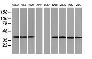ACAT2 Antibody - Western blot of extracts (35 ug) from 9 different cell lines by using anti-ACAT2 monoclonal antibody.