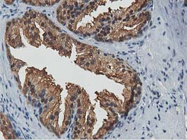 ACAT2 Antibody - IHC of paraffin-embedded Human prostate tissue using anti-ACAT2 mouse monoclonal antibody.