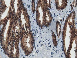 ACAT2 Antibody - IHC of paraffin-embedded Carcinoma of Human prostate tissue using anti-ACAT2 mouse monoclonal antibody.
