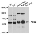 Western blot analysis of extracts of various cell lines, using ASIC2 antibody at 1:1000 dilution. The secondary antibody used was an HRP Goat Anti-Rabbit IgG (H+L) at 1:10000 dilution. Lysates were loaded 25ug per lane and 3% nonfat dry milk in TBST was used for blocking. An ECL Kit was used for detection and the exposure time was 10s.