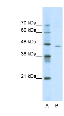 ACCN4 antibody Western blot of Jurkat lysate. This image was taken for the unconjugated form of this product. Other forms have not been tested.