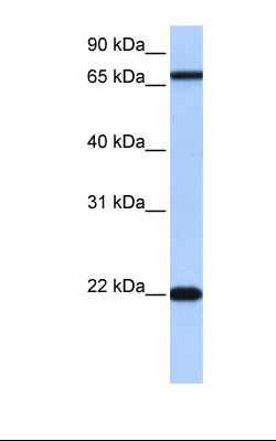 Jurkat cell lysate. Antibody concentration: 0.5 ug/ml. Gel concentration: 12%.  This image was taken for the unconjugated form of this product. Other forms have not been tested.