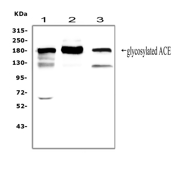 ACE / CD143 Antibody - Western blot analysis of ACE using anti-ACE antibody. Electrophoresis was performed on a 5-20% SDS-PAGE gel at 70V (Stacking gel) / 90V (Resolving gel) for 2-3 hours. The sample well of each lane was loaded with 50ug of sample under reducing conditions. Lane 1: rat lung tissue lysates, Lane 2: mouse lung tissue lysates, Lane 3: human Raji whole cell lysates. After Electrophoresis, proteins were transferred to a Nitrocellulose membrane at 150mA for 50-90 minutes. Blocked the membrane with 5% Non-fat Milk/ TBS for 1.5 hour at RT. The membrane was incubated with rabbit anti-ACE antigen affinity purified polyclonal antibody at 0.5 µg/mL overnight at 4°C, then washed with TBS-0.1% Tween 3 times with 5 minutes each and probed with a goat anti-rabbit IgG-HRP secondary antibody at a dilution of 1:10000 for 1.5 hour at RT. The signal is developed using an Enhanced Chemiluminescent detection (ECL) kit with Tanon 5200 system. A specific band was detected for ACE at approximately 180KD. The expected band size for ACE is at 150KD.