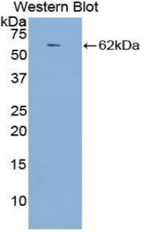 Western blot of recombinant ACE / DCP1 / CD143.  This image was taken for the unconjugated form of this product. Other forms have not been tested.