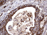 IHC of paraffin-embedded Adenocarcinoma of Human colon tissue using anti-ACE2 mouse monoclonal antibody. (Heat-induced epitope retrieval by 1 mM EDTA in 10mM Tris, pH8.5, 120°C for 3min).
