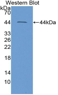 ACE2 / ACE-2 Antibody - Western blot of recombinant ACE2 / ACE-2.