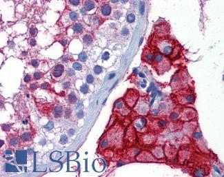 Anti-ACE-2 antibody IHC of human testis. Immunohistochemistry of formalin-fixed, paraffin-embedded tissue after heat-induced antigen retrieval. Antibody concentration 5 ug/ml.  This image was taken for the unconjugated form of this product. Other forms have not been tested.