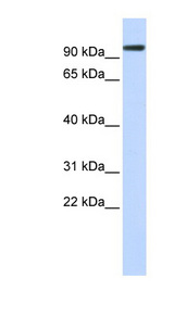ACE2 antibody Western blot of Fetal Kidney lysate. This image was taken for the unconjugated form of this product. Other forms have not been tested.