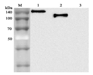 ACE2 / ACE-2 Antibody - Western blot analysis using anti-ACE2 (human), mAb (AC18F) at 1: 2,000 dilution. 1. hACE2 (Fc protein). 2. hACE2 (Ecto domain) (FLAG-tagged). 3. Other hGITR (Fc protein) (control).  This image was taken for the unconjugated form of this product. Other forms have not been tested.