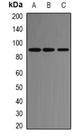 ACE2 / ACE-2 Antibody - Western blot analysis of ACE2 expression in HeLa (A); SP20 (B); PC12 (C) whole cell lysates.