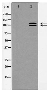 ACE2 / ACE-2 Antibody - Western blot of ACE2 expression in HeLa cells