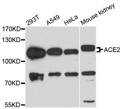 ACE2 / ACE-2 Antibody - Western blot analysis of extracts of various cell lines, using ACE2 antibody at 1:3000 dilution. The secondary antibody used was an HRP Goat Anti-Rabbit IgG (H+L) at 1:10000 dilution. Lysates were loaded 25ug per lane and 3% nonfat dry milk in TBST was used for blocking. An ECL Kit was used for detection and the exposure time was 60s.
