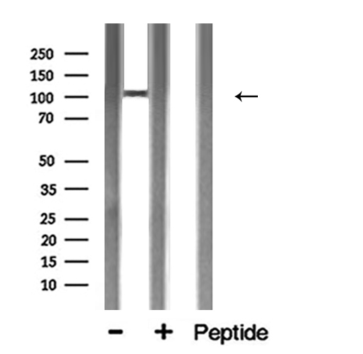ACE2 / ACE-2 Antibody - Western blot analysis of ACE2 expression in mouse brain lysate