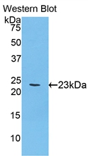 ACHE / Acetylcholinesterase Antibody - Western Blot; Sample: Recombinant protein.