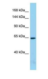 ACIN1 / Acinus antibody Western Blot of Mouse Small Intestine. Antibody dilution: 1 ug/ml.  This image was taken for the unconjugated form of this product. Other forms have not been tested.