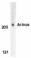 ACIN1 / Acinus Antibody - Western blot of Acinus in K562 whole cell lysate with Acinus antibody at 1 ug/ml.