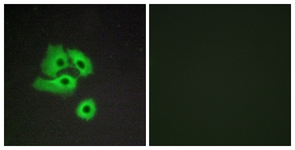 Immunofluorescence of COS7 cells, using CCBP2 Antibody. The picture on the right is treated with the synthesized peptide.