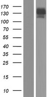 ACLP / AEBP1 Protein - Western validation with an anti-DDK antibody * L: Control HEK293 lysate R: Over-expression lysate