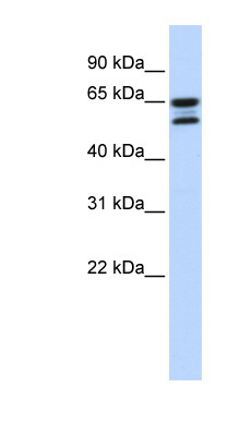 ACOT11 antibody LS-C111625 Western blot of 721_B cell lysate.  This image was taken for the unconjugated form of this product. Other forms have not been tested.