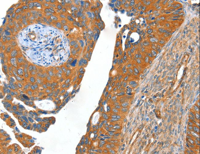 ACOT11 / THEA Antibody - Immunohistochemistry of paraffin-embedded Human cervical cancer using ACOT11 Polyclonal Antibody at dilution of 1:40.