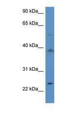 ACOT9 antibody LS-C135890 Western blot of 435S Cell lysate. Antibody concentration 1 ug/ml.  This image was taken for the unconjugated form of this product. Other forms have not been tested.