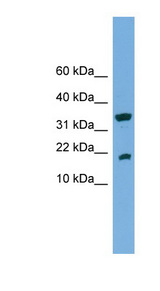 ACP1 / Acid Phosphatase antibody LS-C116207 Western blot of COLO205 cell lysate.  This image was taken for the unconjugated form of this product. Other forms have not been tested.