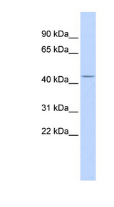 ACP2 / Acid Phosphatase 2 antibody LS-B5788 Western blot of Fetal Brain lysate.  This image was taken for the unconjugated form of this product. Other forms have not been tested.