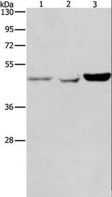 Western blot analysis of A431, A549 and HeLa cell, using ACP2 Polyclonal Antibody at dilution of 1:150.