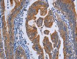 Immunohistochemistry of paraffin-embedded Human prostate cancer using ACP6 Polyclonal Antibody at dilution of 1:50.