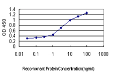 ACPP / PAP Antibody - Detection limit for recombinant GST tagged ACPP is approximately 0.03 ng/ml as a capture antibody.
