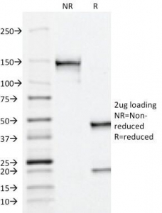 ACPP / PAP Antibody - SDS-PAGE Analysis of Purified, BSA-Free PSAP Antibody (ACCP/1338). Confirmation of Integrity and Purity of the Antibody.