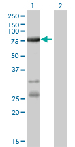Western blot of ACSL5 expression in transfected 293T cell line by ACSL5 monoclonal antibody (M01), clone 5H8.