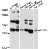 ACSF3 Antibody - Western blot analysis of extracts of various cell lines, using ACSF3 antibody at 1:3000 dilution. The secondary antibody used was an HRP Goat Anti-Rabbit IgG (H+L) at 1:10000 dilution. Lysates were loaded 25ug per lane and 3% nonfat dry milk in TBST was used for blocking. An ECL Kit was used for detection and the exposure time was 60s.