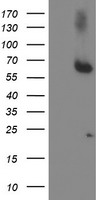 ACSM5 / MACS3 Antibody - HEK293T cells were transfected with the pCMV6-ENTRY control (Left lane) or pCMV6-ENTRY ACSM5 (Right lane) cDNA for 48 hrs and lysed. Equivalent amounts of cell lysates (5 ug per lane) were separated by SDS-PAGE and immunoblotted with anti-ACSM5.