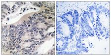 ACSS1 Antibody - Immunohistochemistry analysis of paraffin-embedded human colon carcinoma tissue, using ACSS1 Antibody. The picture on the right is blocked with the synthesized peptide.