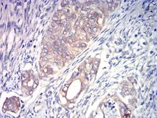 ACSS1 Antibody - Immunohistochemical analysis of paraffin-embedded cervical cancer tissues using ACSS1 mouse mAb with DAB staining.