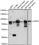 ACSS1 Antibody - Western blot analysis of extracts of various cell lines, using ACSS1 antibody at 1:1000 dilution. The secondary antibody used was an HRP Goat Anti-Rabbit IgG (H+L) at 1:10000 dilution. Lysates were loaded 25ug per lane and 3% nonfat dry milk in TBST was used for blocking. An ECL Kit was used for detection and the exposure time was 10s.